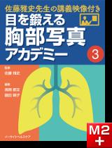 目を鍛える胸部写真アカデミー 佐藤雅史先生の講義映像付き (3)