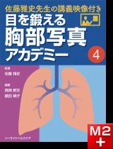 目を鍛える胸部写真アカデミー 佐藤雅史先生の講義映像付き (4)