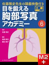 目を鍛える胸部写真アカデミー 佐藤雅史先生の講義映像付き (6)