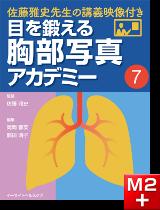 目を鍛える胸部写真アカデミー 佐藤雅史先生の講義映像付き (7)