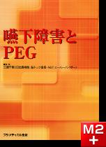 嚥下障害とPEG