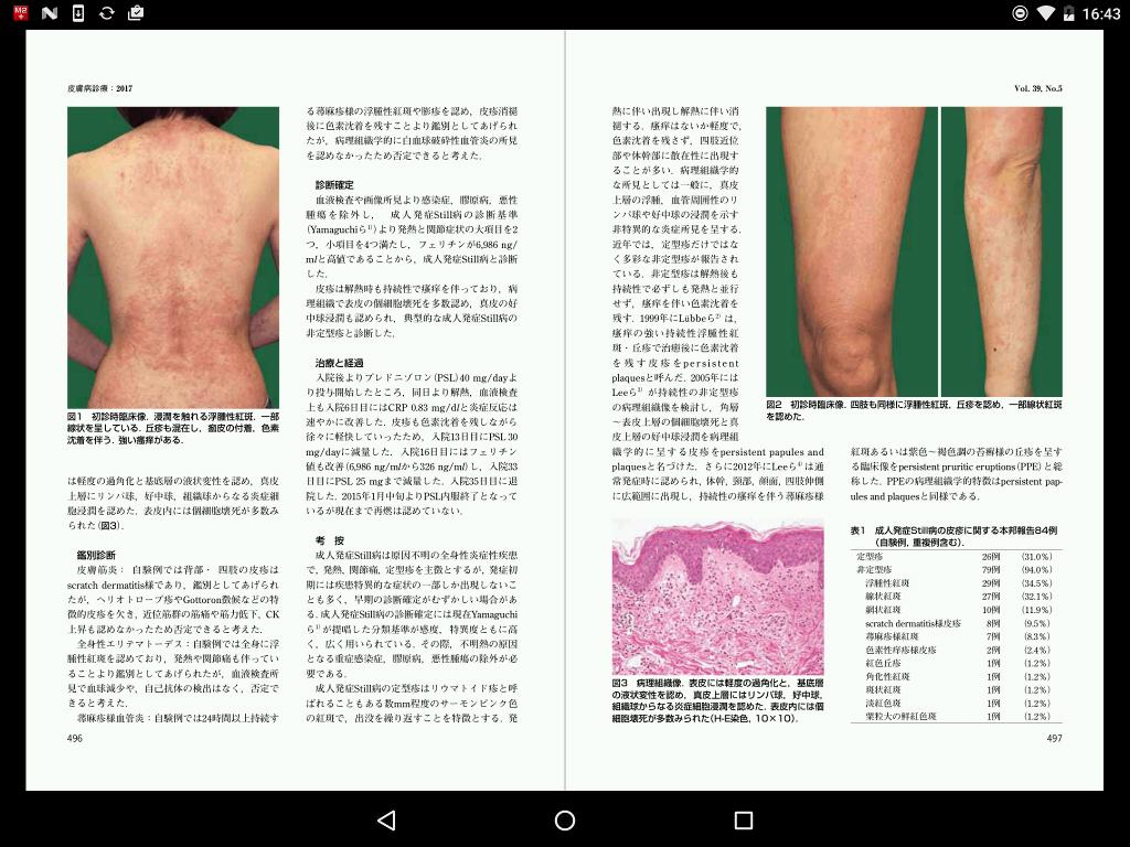 薬剤誘発性ループス - Drug-induced lupus erythematosus ...