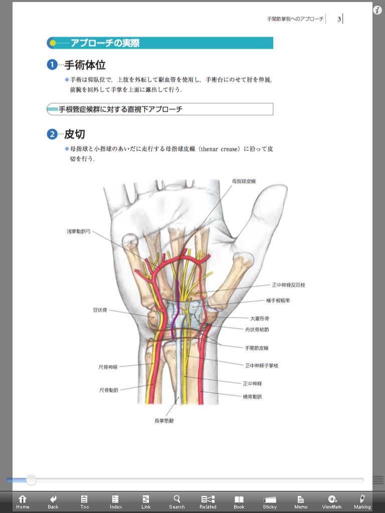 整形外科手術イラストレイテッド手関節・手指の手術[動画付き]