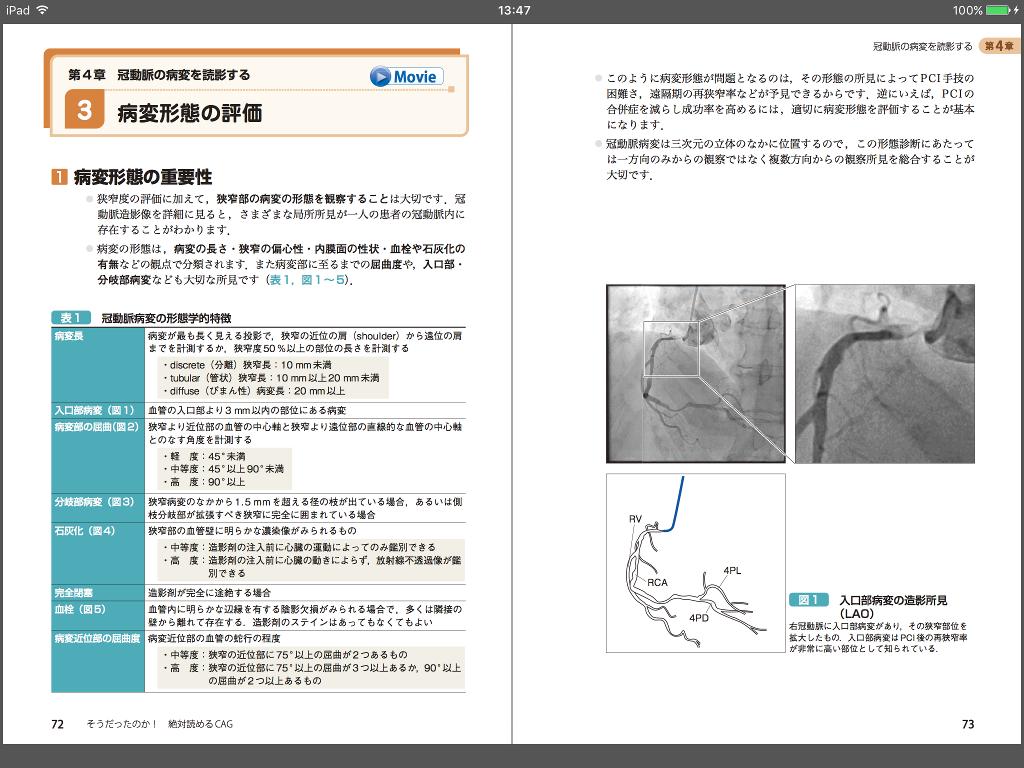 電子書籍版|そうだったのか! 絶対読めるCAG シェーマでわかる冠動脈造影の読み方 - M2PLUS