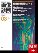 画像診断 2018年3月号(Vol.38 No.3) 脳脊髄液動態のすべて