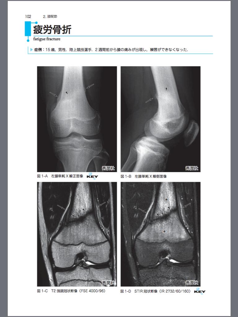 画像診断別冊 KEY BOOKシリーズ 骨軟部疾患の画像診断第2版