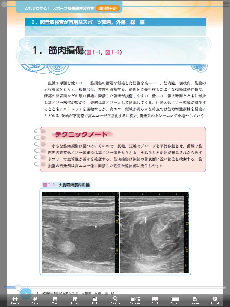 肩関節の解剖まとめ | リハ局