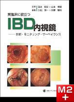 実臨床に役立つIBD内視鏡-診断・モニタリング・サーベイランス