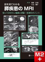 図を見てわかる 膵疾患のMRI 知っておきたい撮像と読影・診断のポイント
